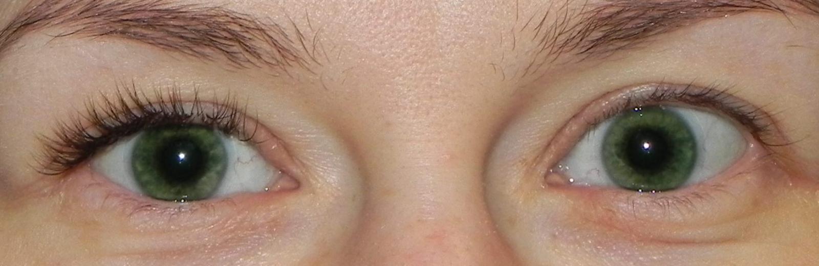 один глаз