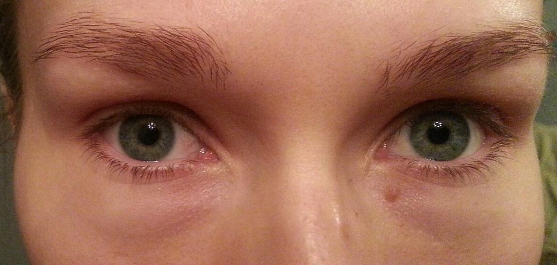 Как сделать чтобы не было синяка под глазом 83