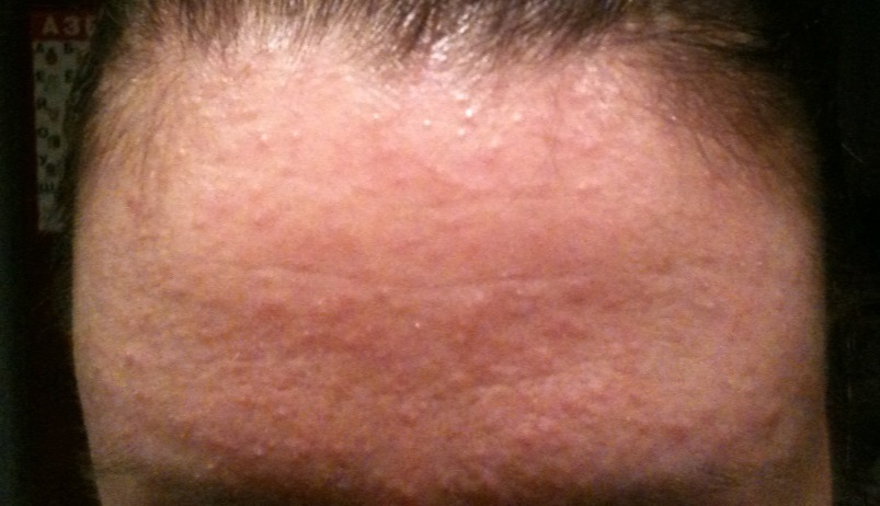 сыпь на лбу лице шее причины