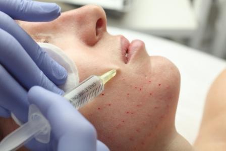 Инъекционные препараты MesoSet  в терапии старения  кожи