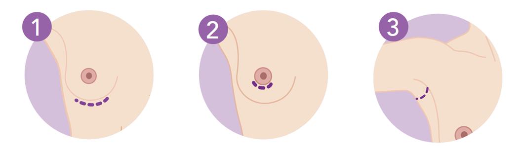 Разрезы для установки грудных имплантов. Зоны,где они могут выполняться.