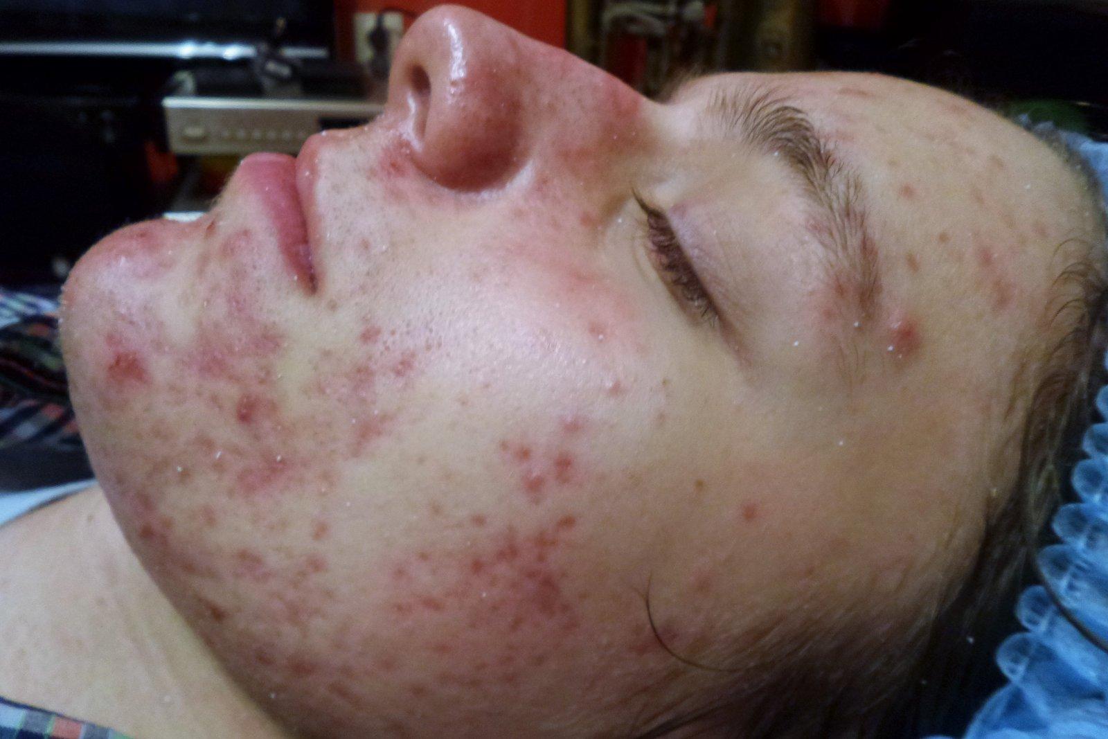 Акне и терапия Juliette Armand для жирной и проблемной кожи