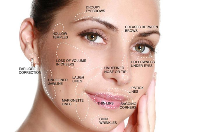 dermal-fillers-face-map.jpg